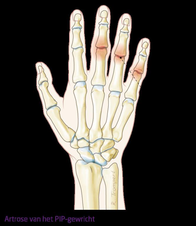 pijn in gewrichten handen