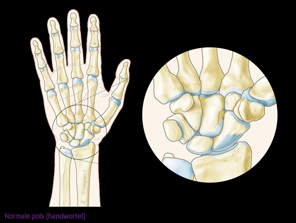 artrose duim operatie