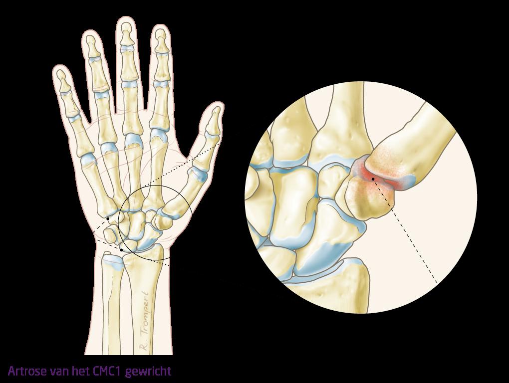 inflamația dimexidului articulației ligamentelor)