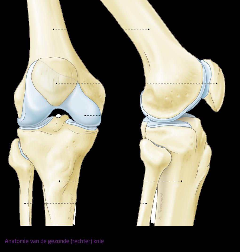 pijn in onderbeen