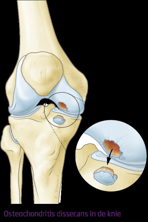 Ocon Aandoening Osteochondritis Dissecans Van De Knie
